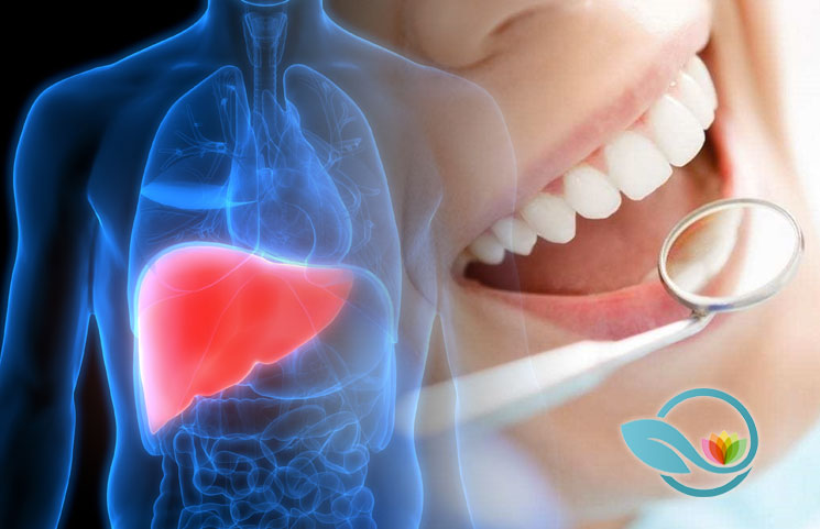Link-Between-Oral-Health-and-Liver-Cancer
