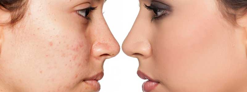 Using-Acne-Treatments