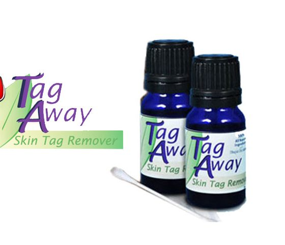 Tag Away: Is Tag Away the Ultimate Skin Tag Removal Solution?