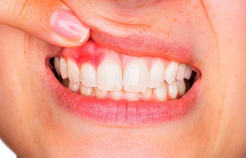 Research Links Heart Problems and Other Serious Health Conditions to Gum Disease